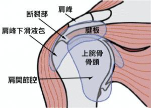 肩関節腱板(ローテーターカフ)のイラスト