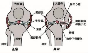 変形性膝関節症の説明図