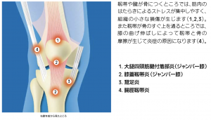膝周りの慢性障害(ジャンパー膝・鵞足炎・ランナー膝)の痛みが発生する部位の説明図