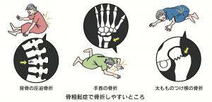 骨粗しょう症で骨折が起こりやすい箇所の説明図
